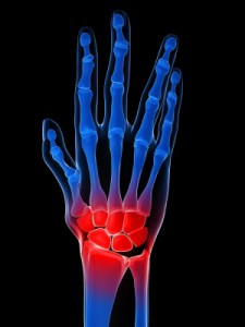 arthritis treatment for hands 225x300 Arthritis Treatment For Hands